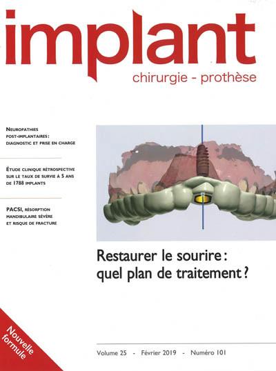 IMPLANT (Chirurgie - Prothèse)